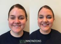 professional makeup newton ma